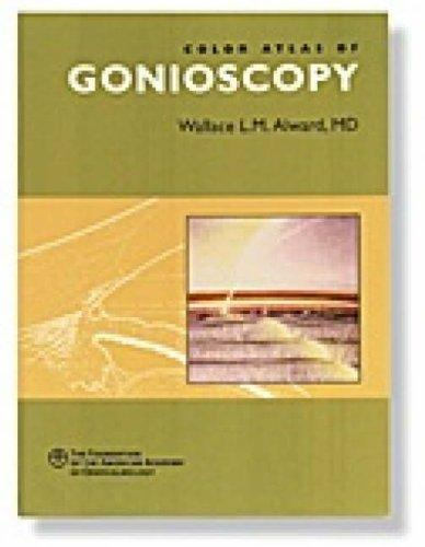 Color Atlas of Gonioscopy
